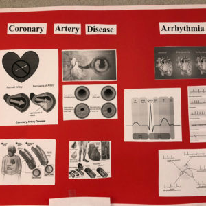 ECG Board done by a student